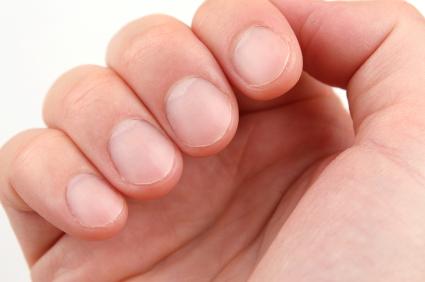Cuidados com as unhas - Dermatologista Curitiba - Clínica CMP