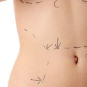 Cirurgia Plástica Curitiba - Agende uma Consulta 41 3022-4242