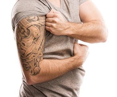 Tratamento para Remoção de Tatuagem em Curitiba - Cirurgia Plástica Curitiba - Clínica CMP