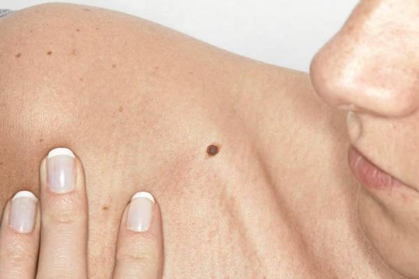 Autoexame para prevenção Câncer de Pele - Dermatologista Curitiba - Clínica CMP