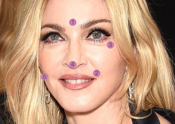 Rejuvenescimento Facial: Madonna - Cirurgia Plástica Curitiba