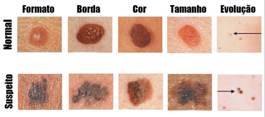Resultado de imagem para cancer de pele