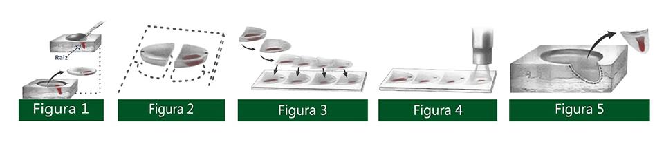 Como é realizada a Cirurgia Micrográfica de Mohs - Dermatologista Curitiba - Clínica CMP
