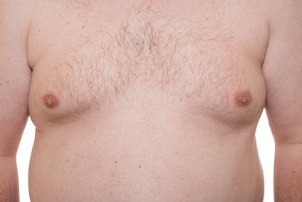 Por que fazer cirurgia plástica de Ginecomastia (redução de mama masculina) - Clínica CMP Curitiba