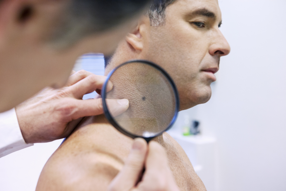 Preparo Excisão de Tumores na Pele - Dermatologista Curitiba - Clínica CMP