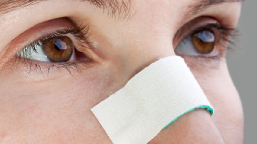 Rinoplastia (Cirurgia no Nariz): cuidados posteriores e recuperação - Cirurgia Plástica Curitiba - Clínica CMP