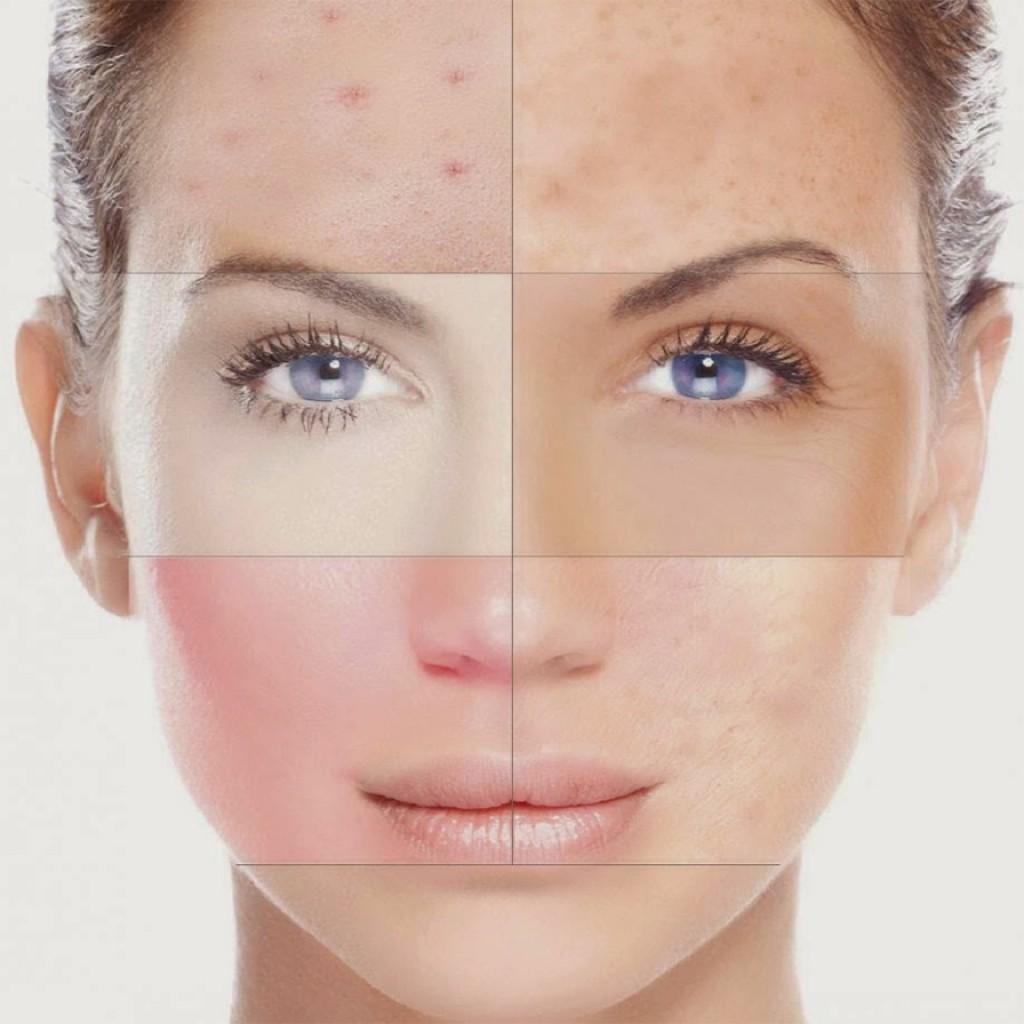 Tratamentos de cicatrizes de acne dermatologista curitiba