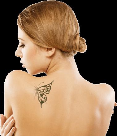 Tratamento de Remoção de Tatuagem Curitiba - Cirurgia Plástica - Clínica CMP