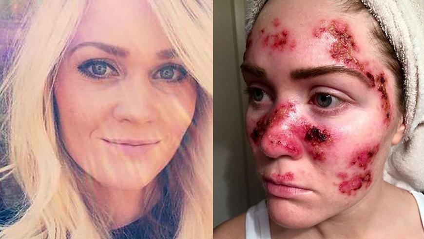 Por que o bronzeamento artificial é perigoso - Dermatologista Curitiba - Clínica CMP