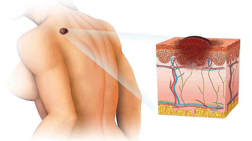 Exame Preventivo de Pele (Câncer de Pele) - Dermatologista Curitiba - Clínica CMP