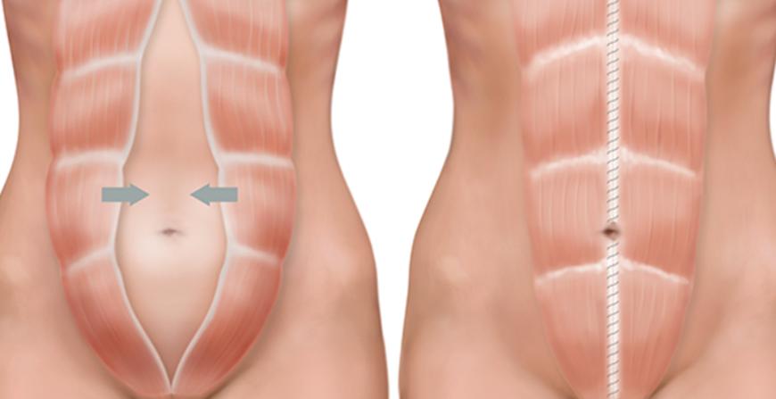 Os benefícios médicos da Abdominoplastia - Cirurgia Plástica Curitiba - Clínica CMP