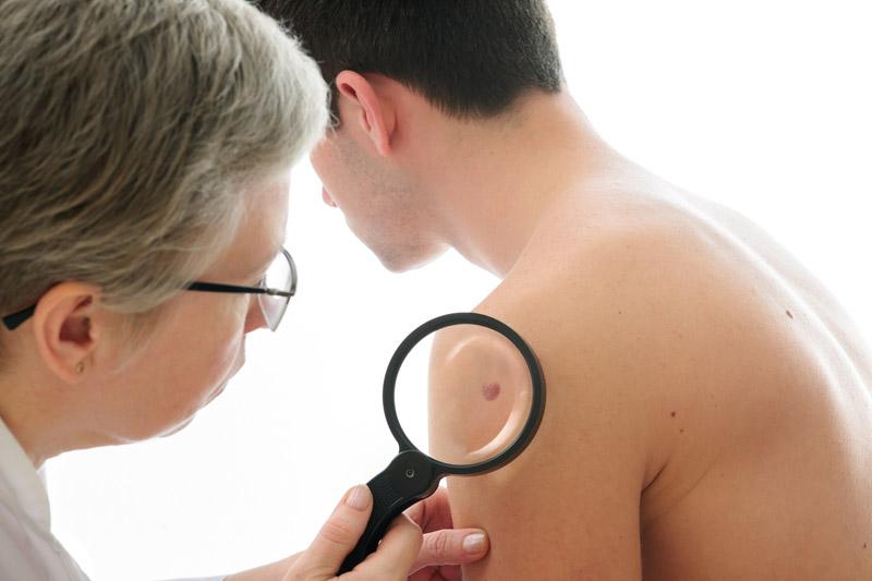 Fototipo de pele - Dermatologista Curitiba - Cínica CMP